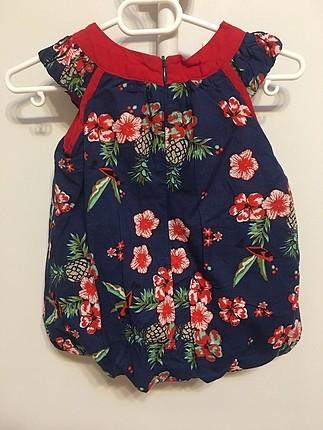 Kız Bebek Balon Elbise